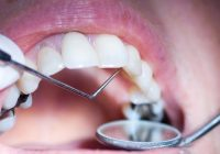 Home remedies in Tooth Nerve Pain and Whitening